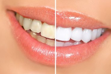 Dentist in Dunwoody   Look Years Younger by Brightening Your Smile With Our Zoom!® Teeth Whitening Treatment