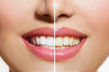 Dentist Dunwoody   Stained Teeth