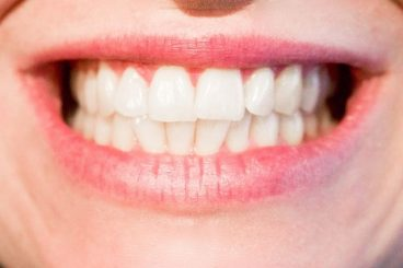Dunwoody Dentist | Here's What You're Doing Wrong When Brushing Your Teeth